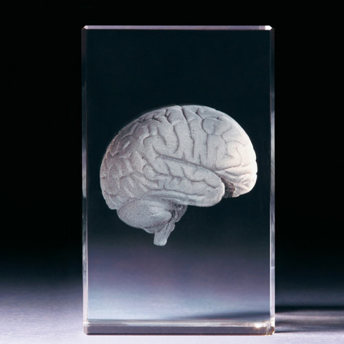 Glasblock - Gehirn anatomisch